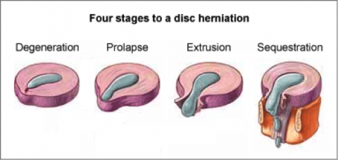 4 Stages To Disc Herniation