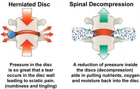 An injured disc and a disc decompressed